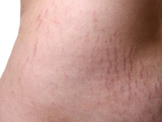 10 Stretch marks myths you need to debunk today