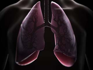 Surprising causes of lung trouble