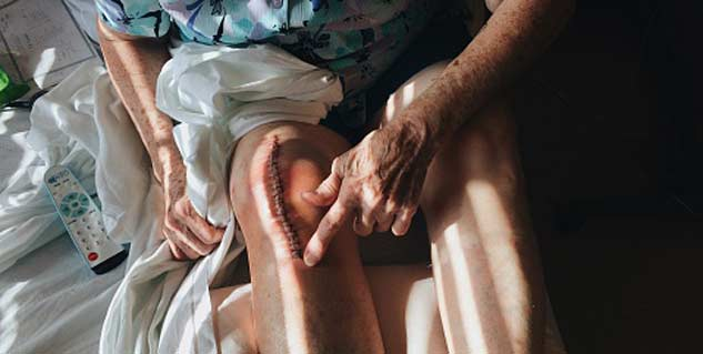 Knee replacement surgery risk