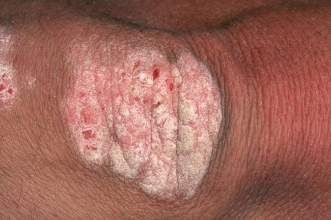 एरिथ्रोडर्मिक सोरायसिस
