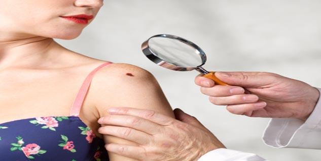 Skin Cancer in Hindi