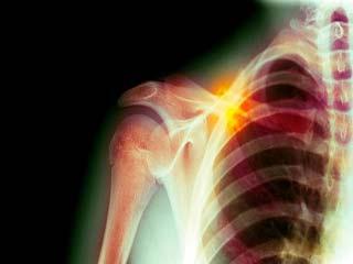 कंधों की हड्डियों के कैंसर के लक्षण