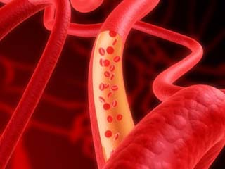What you need to know about coronary microvascular disease