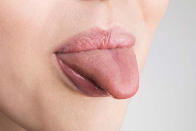 Burnt tongue