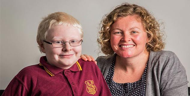 albinism disease