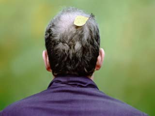 Home remedies for hair loss in men