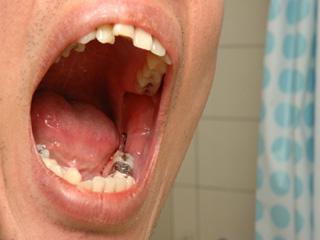 जानिये किन कारणों से बुद्धि दांत नहीं उखड़वाना चाहिए