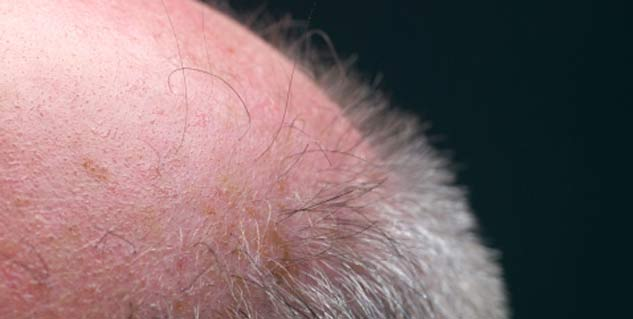 Hair transplant stages of growth