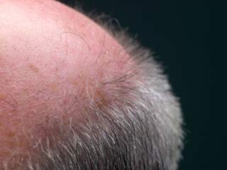 Hair growth timeline after hair transplant