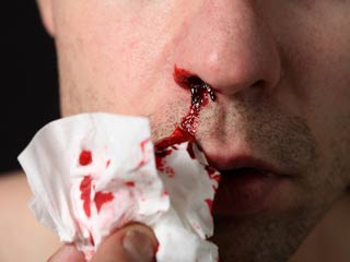 What to Do When Your Nose Bleeds