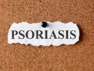 7 Psoriasis Triggers to Avoid