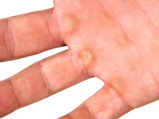 How to Cure Corns and Calluses
