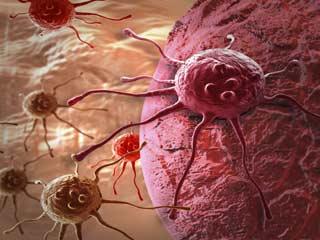 शरीर में कैसे फैलती हैं कैंसर कोशिकाएं