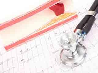 रक्त वाहिकाओं और धमनियों को साफ करने के 9 घरेलू उपाय