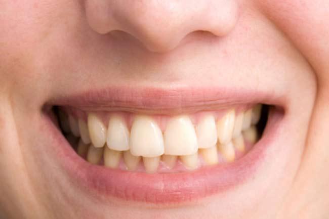Bad Breath and Yellowish Teeth