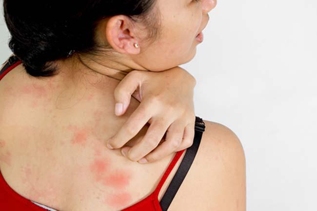 त्वचा संबंधी विकार दूर करें