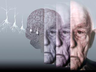 रोज व्यायाम और ग्रीन टी लेने से कम होगा अल्जाइमर का खतरा