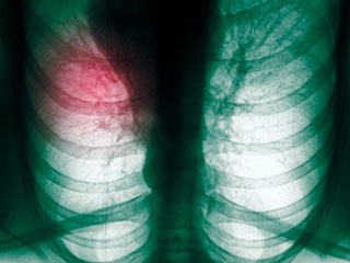 Worried you may have Lung Cancer? Just Take more Vitamin E