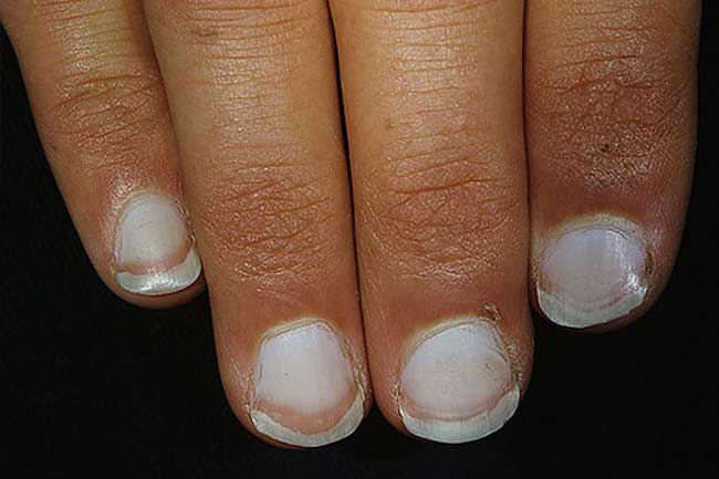 Whitened Nails