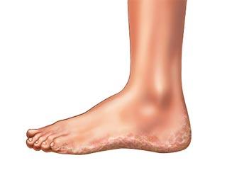 पैरों के पसीने से कैसे पायें छुटकारा