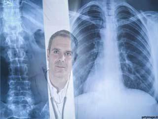 हड्डियों के बारे में आपके डॉक्टर ने नहीं बताई होंगी ये बातें
