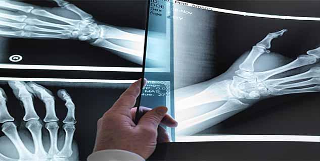 Bone cancer prognosis