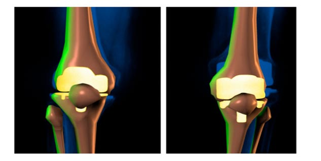 joint replacement in hindi