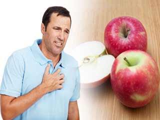 हार्टबर्न की शिकायत है तो करें सेब का सेवन
