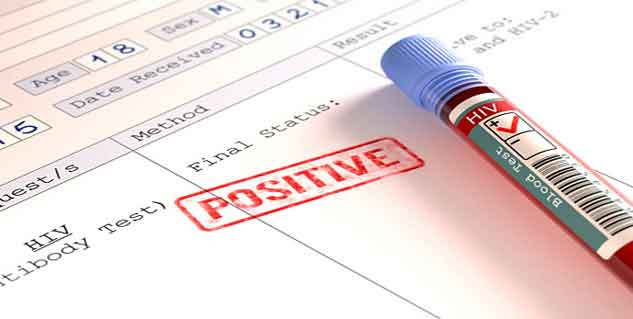 HIV treatment in hindi