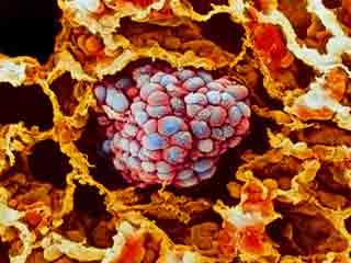क्या है फेफड़े का कार्सिनॉइड ट्यूमर