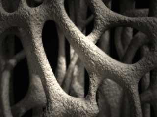 क्या है आस्टियोपोरोसिस