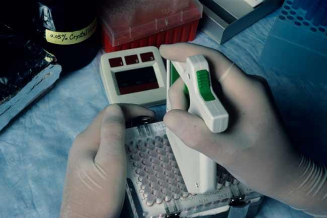 एड्स टेस्ट कॉम्पलीकेटेड है