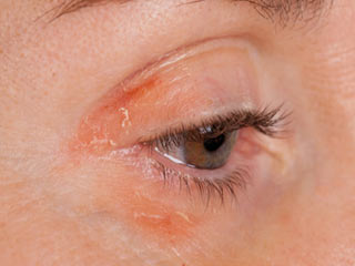 How to deal with psoriasis around your eyes