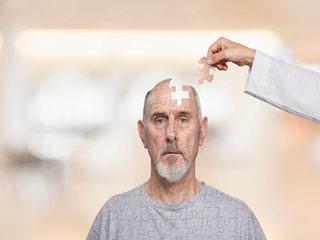 अल्जाइमर के लक्षण और इससे बचाव
