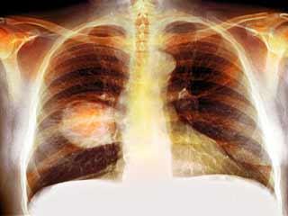 स्माल सेल लंग कैंसर के बारे में जानें