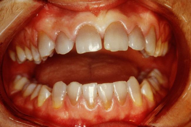 बढ़ती उम्र और दांत