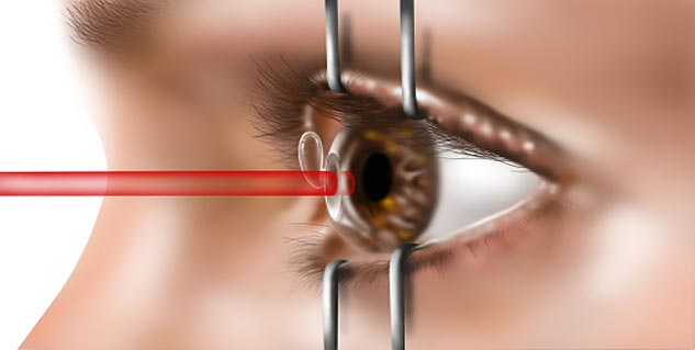 Lasik Eye Surgery in Hindi