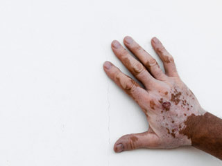 Homeopathic treatment for vitiligo