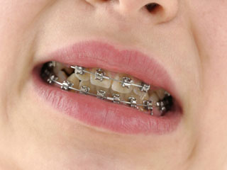 दांतों के लिए ब्रेसेस के अलावा मौजूद हैं ये दूसरे विकल्प