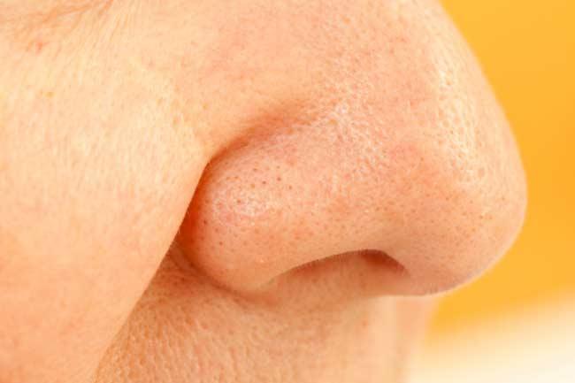 Tighten pores
