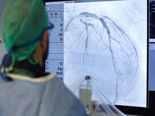 Who needs coronary angioplasty?