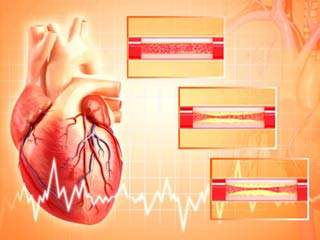 What to expect during coronary angioplasty