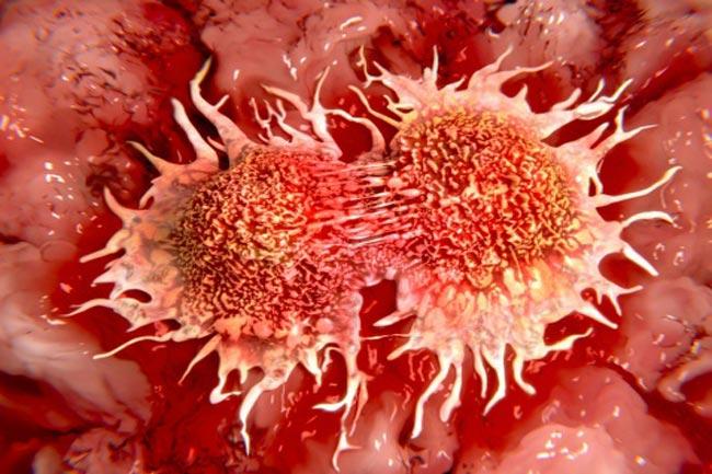 कैंसर कोशिकाओं का फैलाव