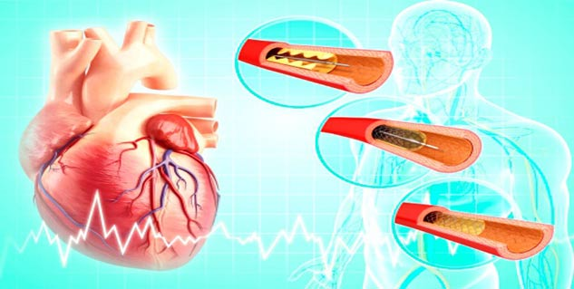 angioplasty preparation