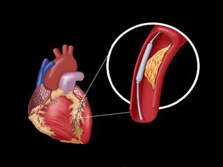 भारत में दिल की समस्या से जुड़े इन 6 तथ्यों के बारे में जानें