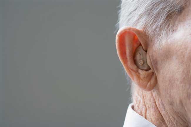 मिथ: सुनने की मशीन और इंप्लांट से सामान्य सुन सकते है
