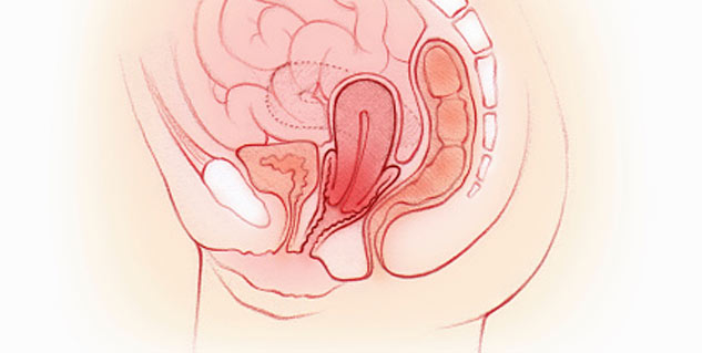 Is Infertility related to uterine tuberculosis
