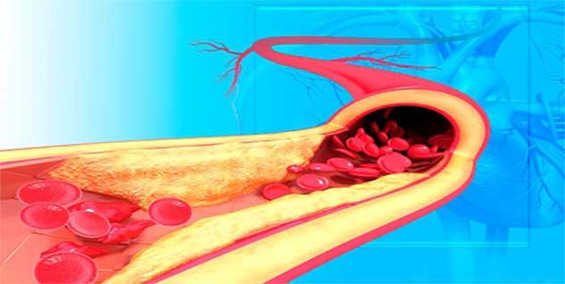 heart disease treatment in hindi