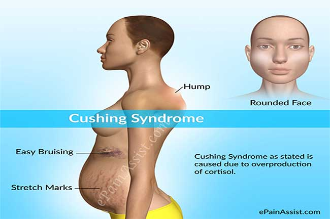 क्या है कुशिंग रोग?