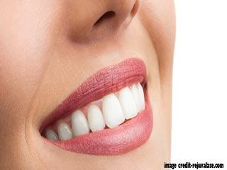 दांतों को सफ़ेद करने के आसान तरीके